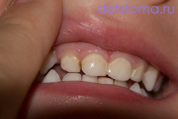 Кариес молочных зубов у детей раннего возраста (фото) и 86