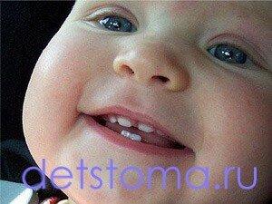 Сколько молочных зубов должно быть у детей