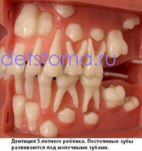 Смена-молочных-зубов