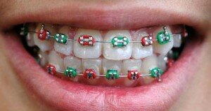 Цветные брекеты на зубы