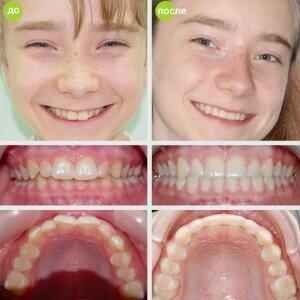 Брекеты инкогнито до и после фото