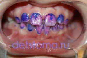 Устаревшая методика - серебрение зубов у детей