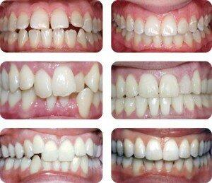 Cапфировые брекеты фото до и после