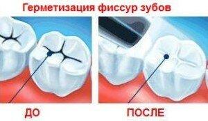 Герметизация фиссур постоянных зубов у детей