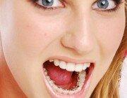 Больно ли ставить брекеты?