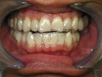 Использование капп для зубов фото