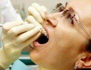Как ставят брекеты на зубы