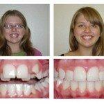 Лечение прикуса брекетами фото до и после