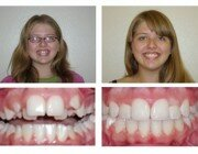 до и после дистопия