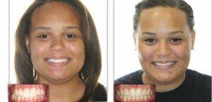 Перекрестный прикус фото до и после лечения