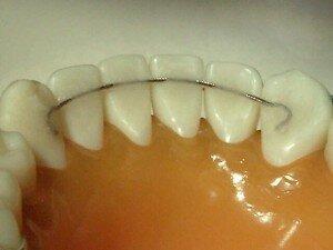 Несъемные ретейнеры после ношения брекетов для закрепления результата лечения