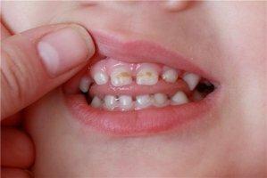 Лечение пародонтита у детей