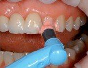 Чистка-зубов-в-клинике