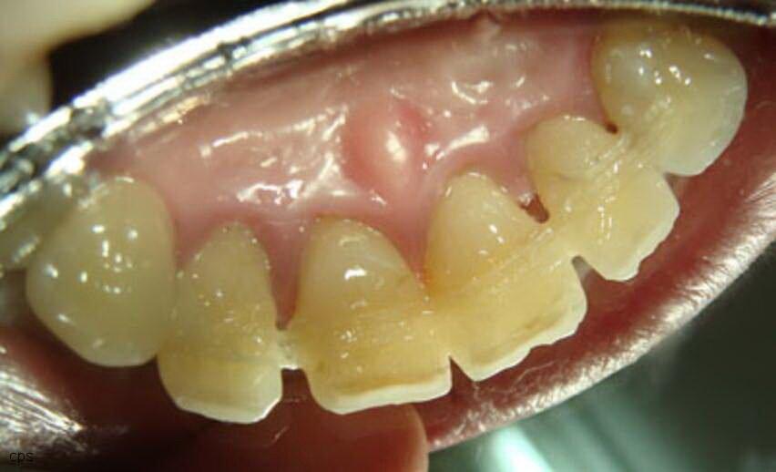 Методика шинирования зубов