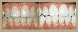 Фото до и после лазерной чистки зубов