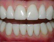 Аппарат «Аir flow» для снятия зубного камня