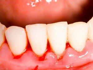 Кровоточивость после чистки зубов