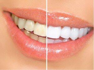 После процедуры чистки зубки станут белее