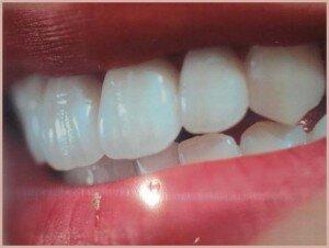 шинирование зубов при пароднтозе