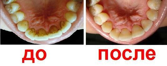 можно ли очистить зубы после серебрения для книг глубной