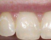 Белые пятна на эмали зуба