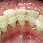 Метод шинирования подвижных зубов при пародонтозе