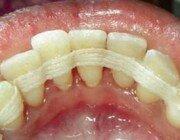 шинирования подвижных зубов при пародонтозе