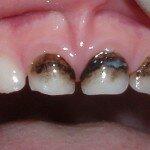 Основные причины образования черного налета на зубах