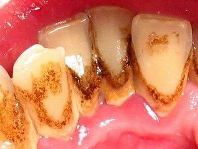 Черный налет на зубах взрослого