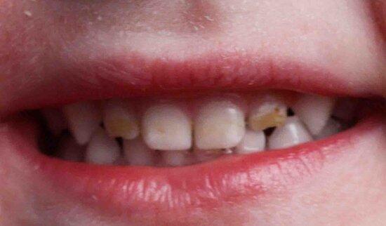 Черный налет на зубах ребенка
