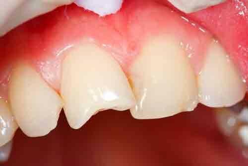 Откалываются зубы, что делать, если откололся кусочек зуба 14