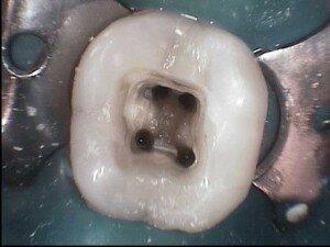 Каналы в зубе