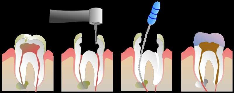 Пломбирование каналов и зубов стоимость 75