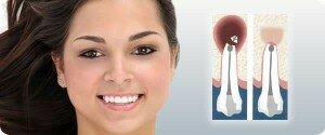Пломбировка каналов зубов