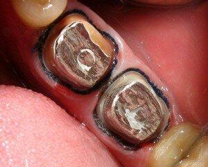 Вкладка равномерно распределяет нагрузку на зуб