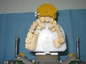 Изготовление мостовидного протеза.