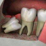 Как проходит удаление ретинированного дистопированного зуба?