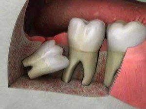 Ретинированный дистопированный зуб способен вызывать массу осложнений.