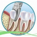 Как удаляют зуб мудрости, как проходит операция?
