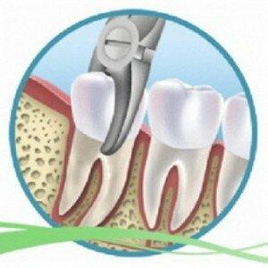 Стоматолог должен хорошо захватить и расшатать зуб.