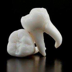 У молочных зубов есть корни, которые рассасываются