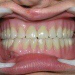 Что такое покрывной зубной протез и когда его устанавливают?