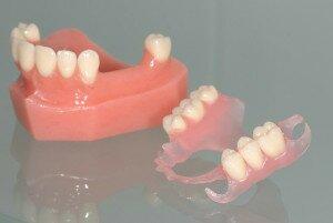 Зубной протез Акрифри