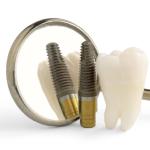 Что такое экспресс имплантация зубов?