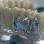 Когда имплантация зубов невозможна, какие существуют противопоказания?