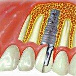 Лучшие зубные мини импланты по мнению врачей и пациентов