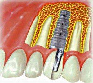 Импланты зубные Xive