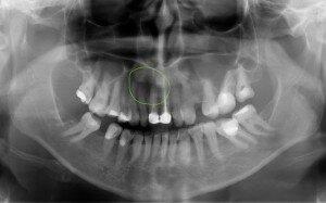 Рентгеновский снимок кисты
