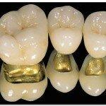 Как выглядят коронки на зубы, и какие они бывают?