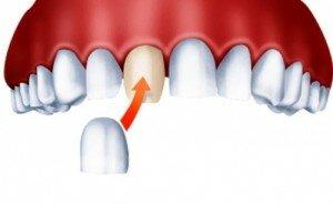Накладки на зубы - виниры
